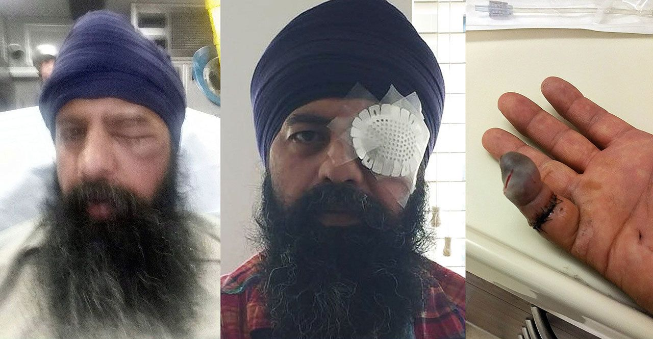 Attackers assault Sikh man, remove turban, cut off his hair